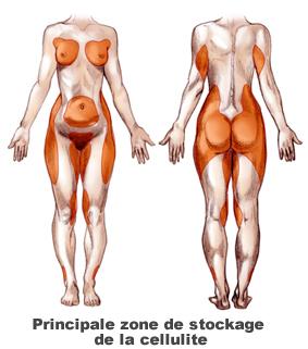 cellulite partout sur le corps